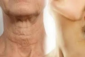 Потеря упругости, дряблость кожи